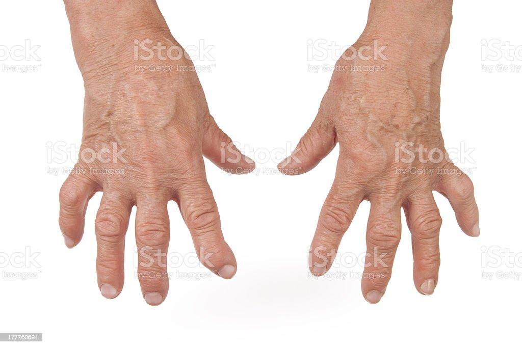 Народные средства лечения артрита пальцев рук в  218