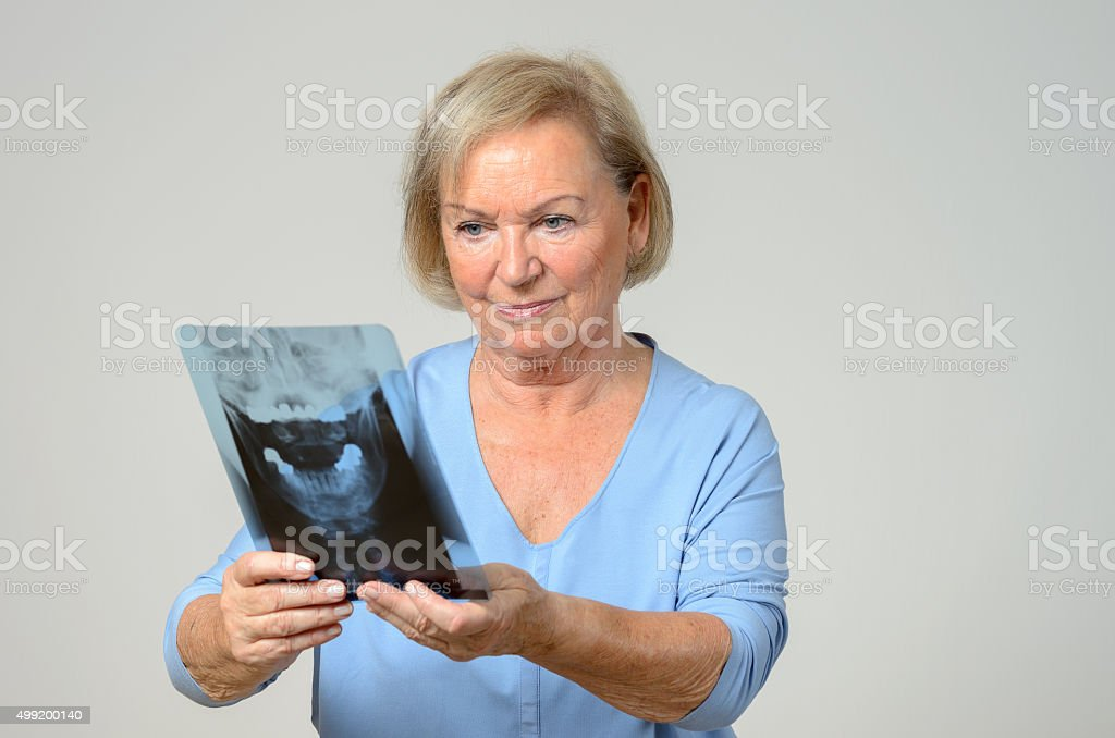 Elderly patient or doctor looking at an x-ray stock photo
