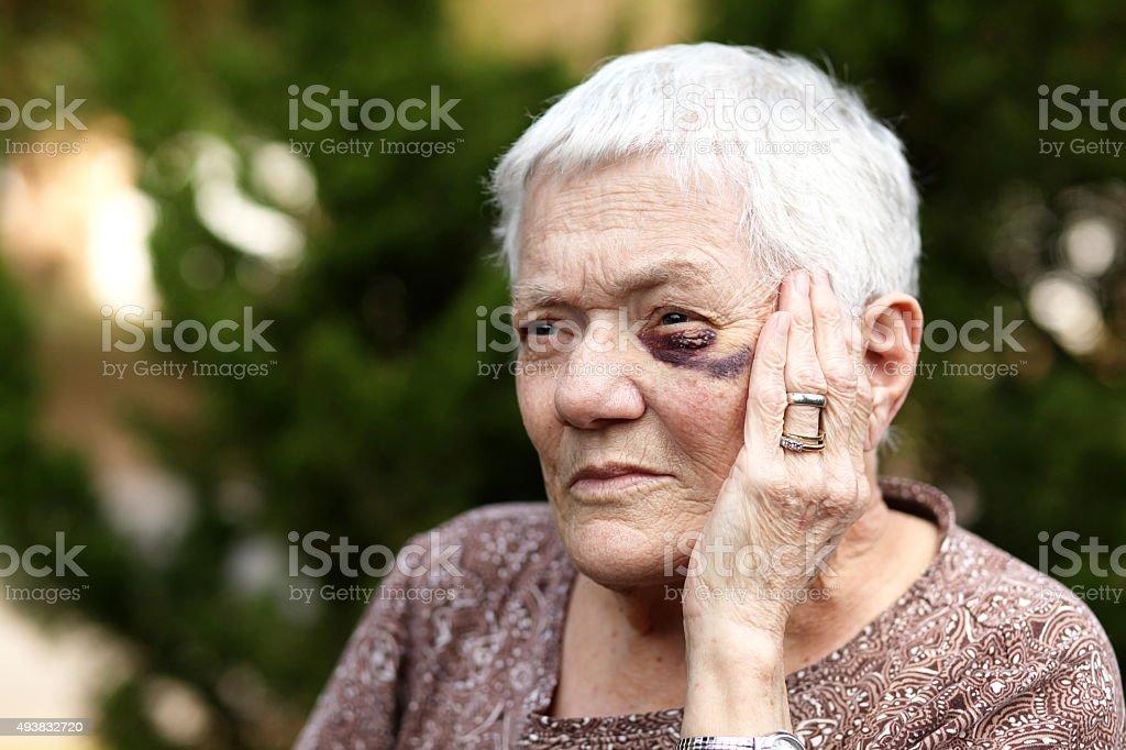 Elderly Woman with Black Eye stock photo