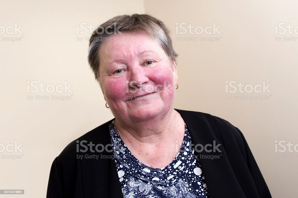 Elderly woman with rosacea, facial skin disorder stock photo
