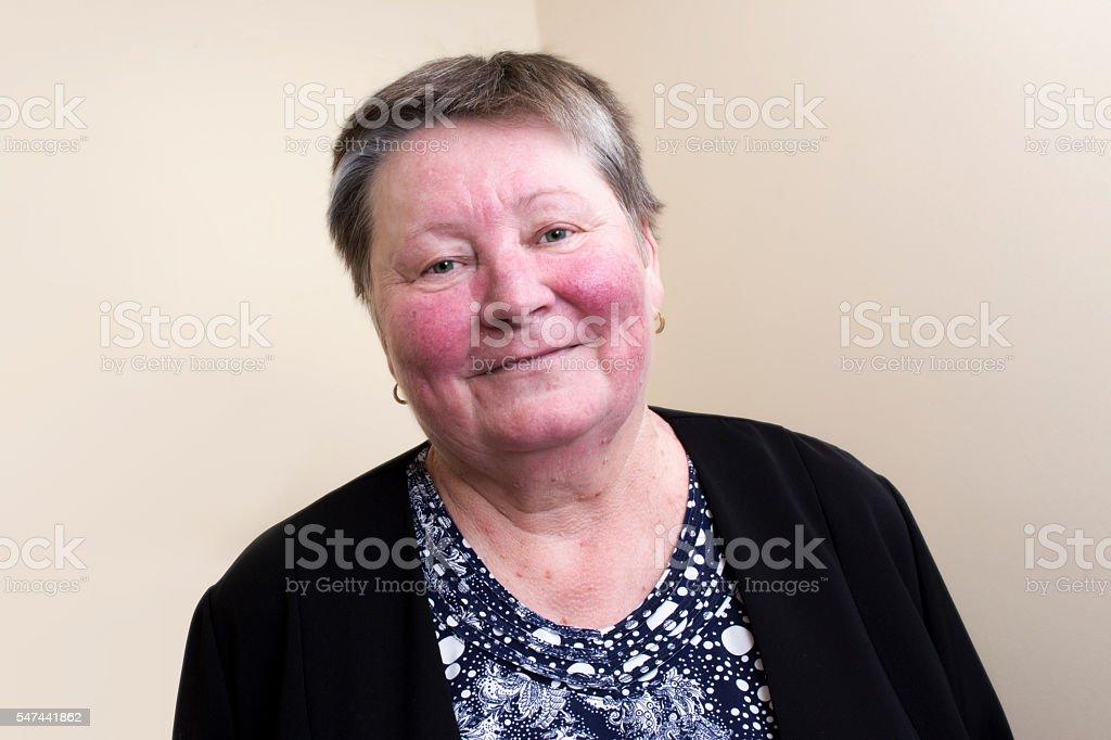 Elderly woman with rosacea, facial skin disorder stock photo