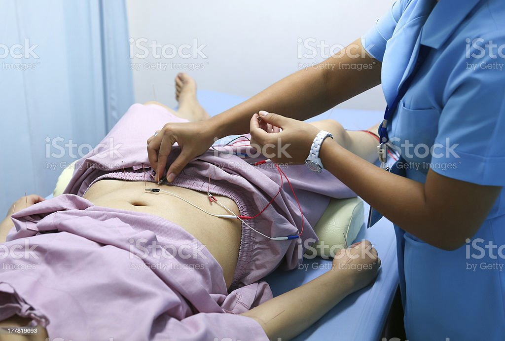 Electrical stimulating acupuncture treatment stock photo