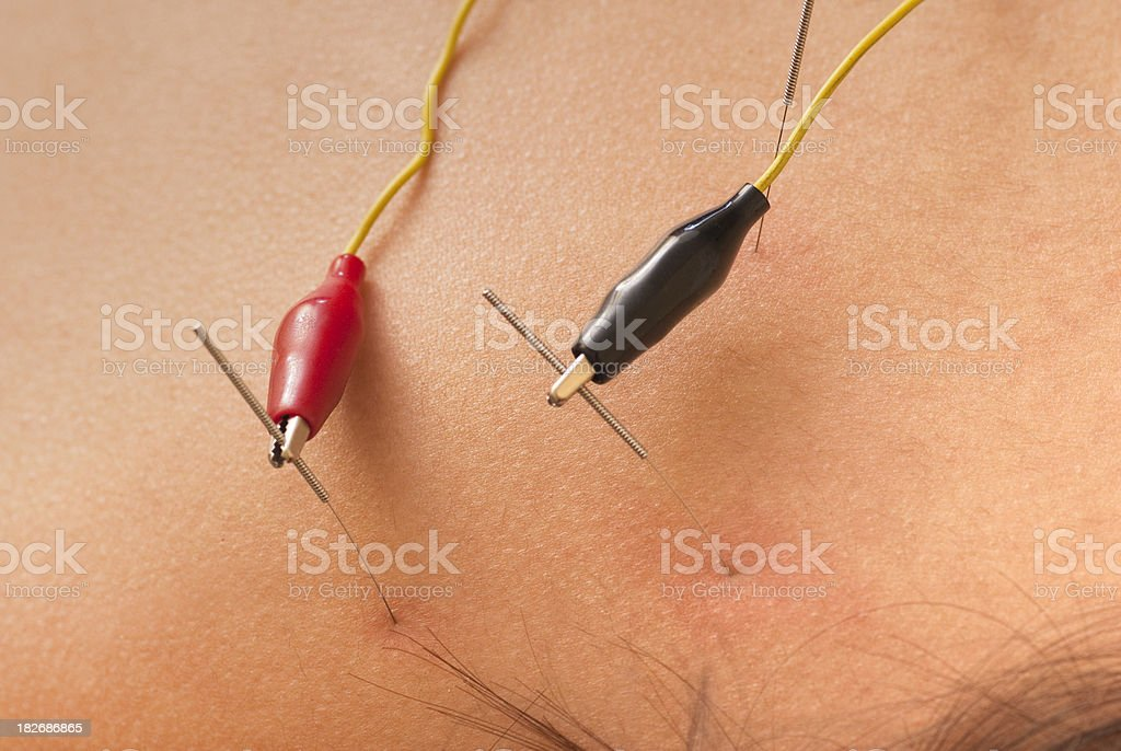 Electrical Stimulation Therapy - Acupuncture Series royalty-free stock photo