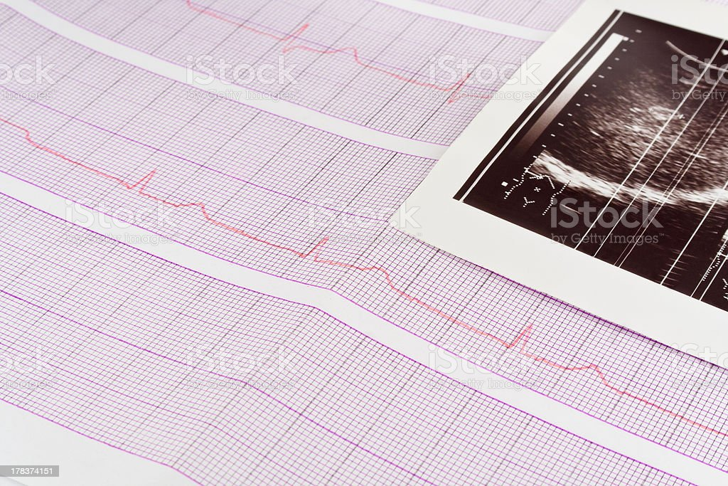 Electrocardiogram and ultrasound shot royalty-free stock photo