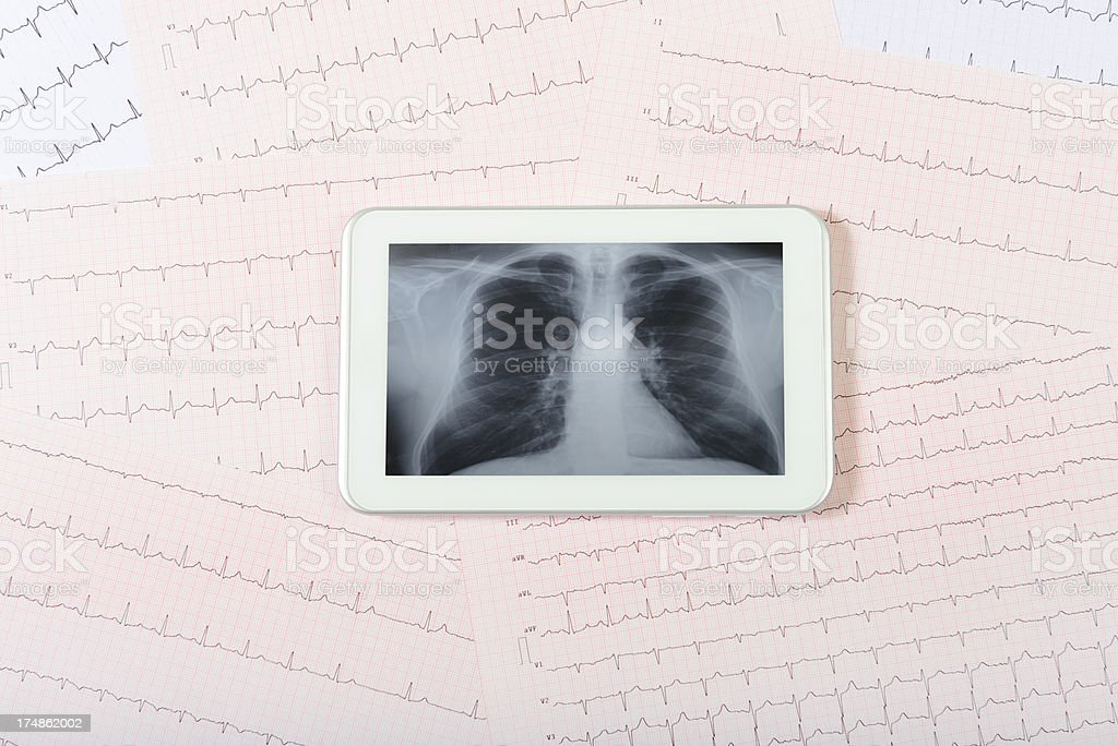 Electrocardiogram and X-ray on Mini Digital Tablet royalty-free stock photo