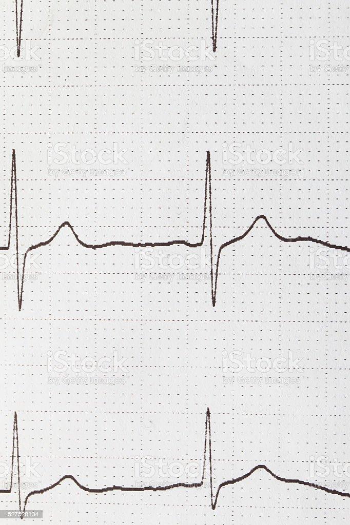 electrocardiogram chart stock photo