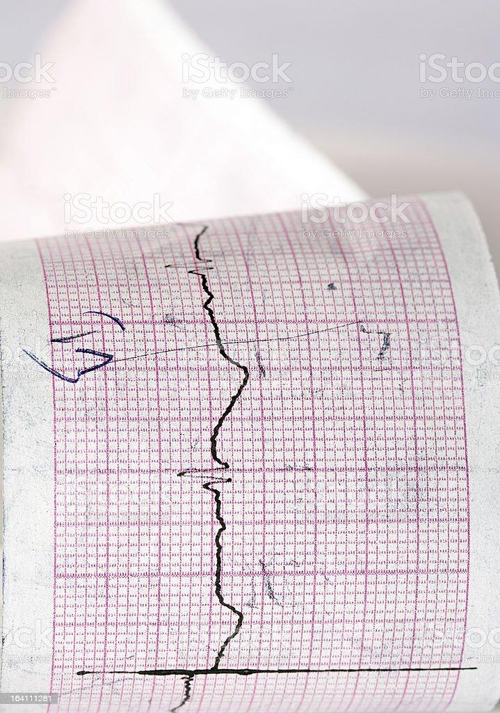 Electrocardiogram CTG stock photo