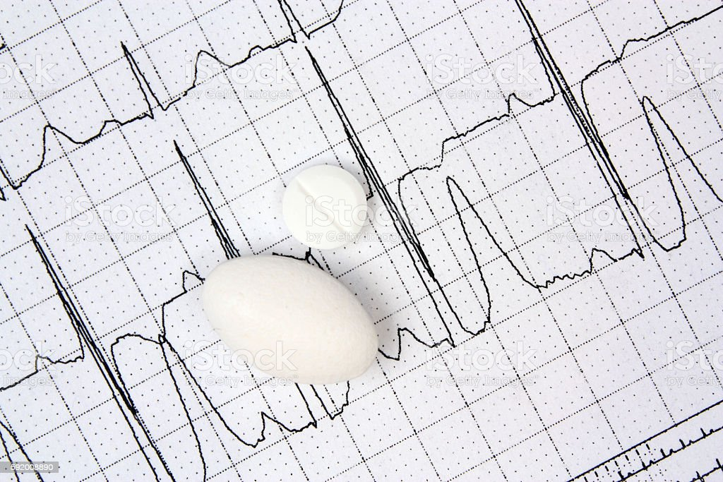 Electrocardiogram ECG and white pills stock photo