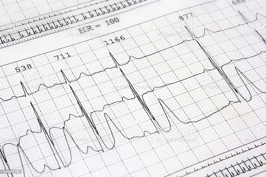 Electrocardiogram ekg heart stock photo