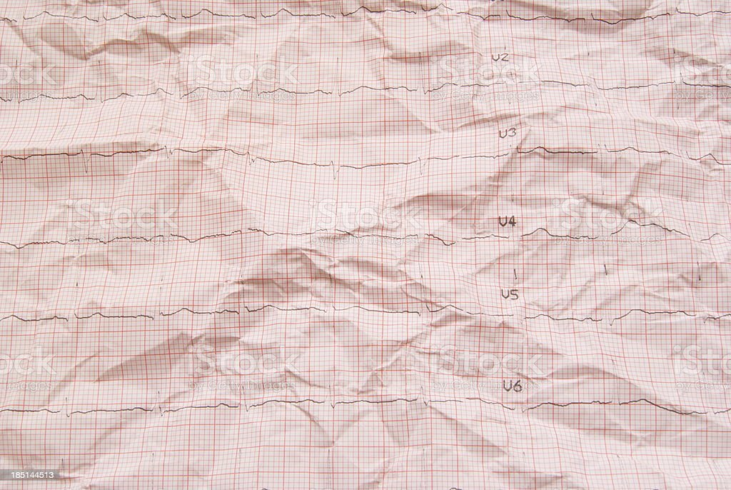 electrocardiogram paper royalty-free stock photo