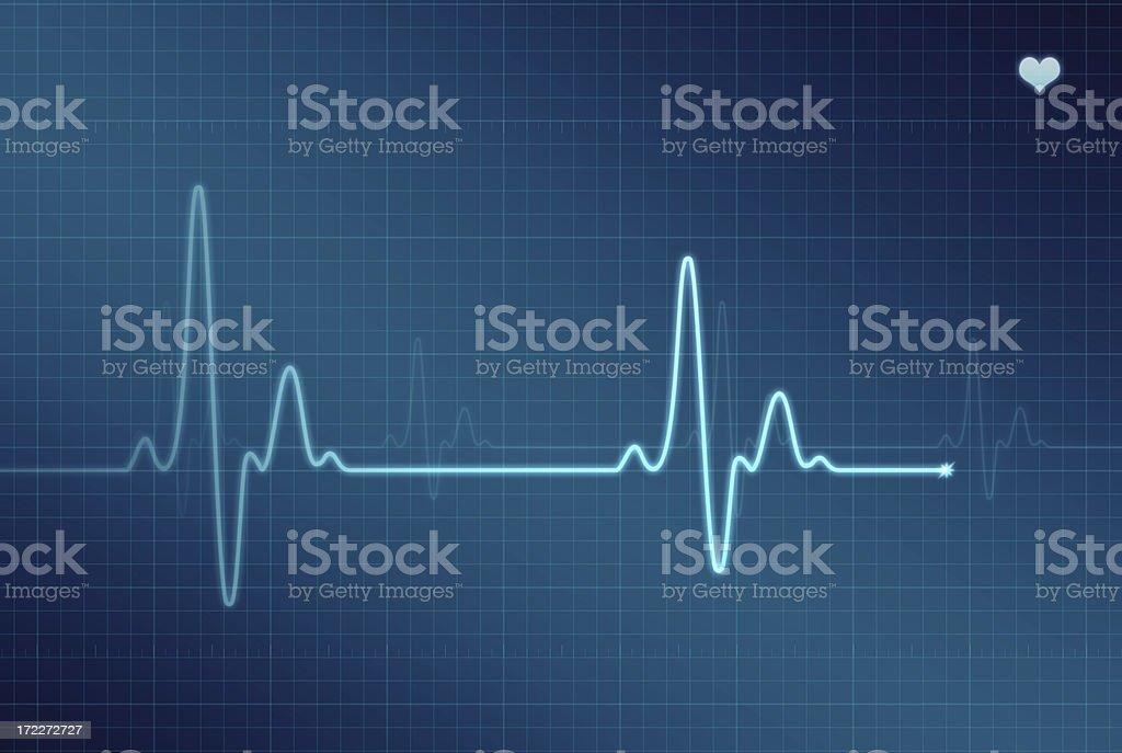 EKG - Electrocardiogram (XXL) royalty-free stock photo