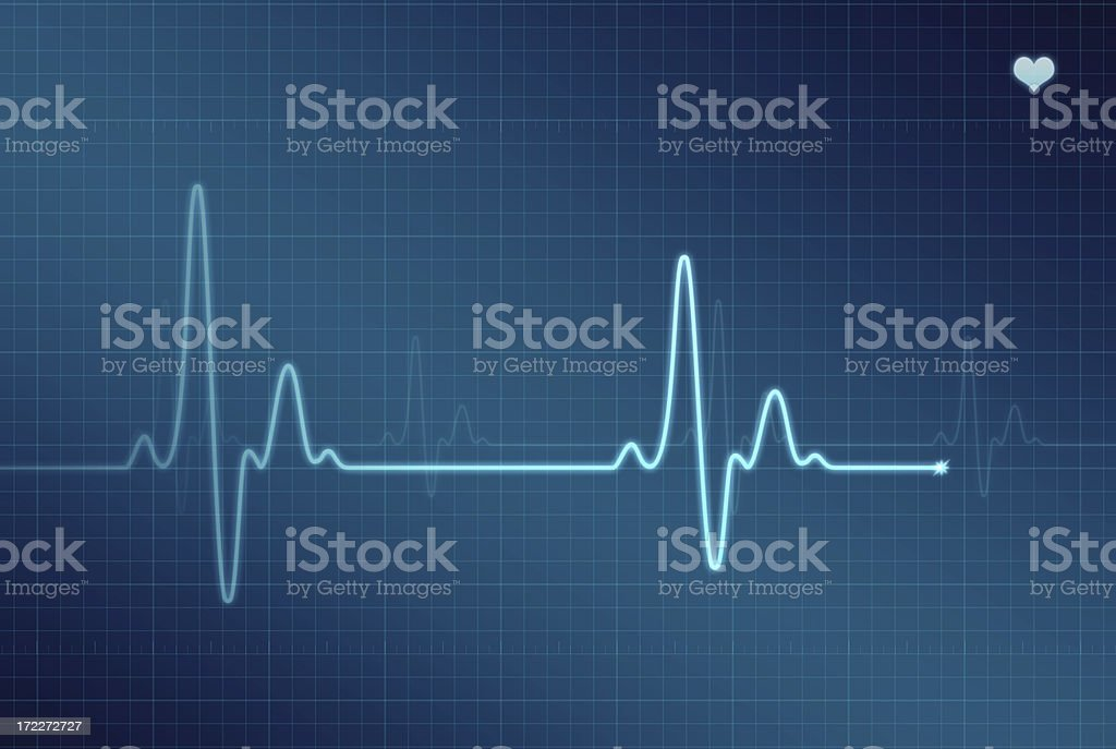 EKG - Electrocardiogram (XXL) stock photo