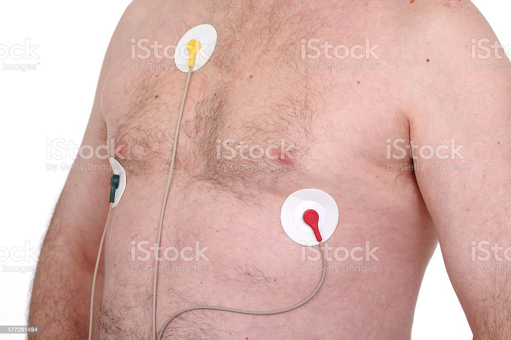Electrocardiogram royalty-free stock photo