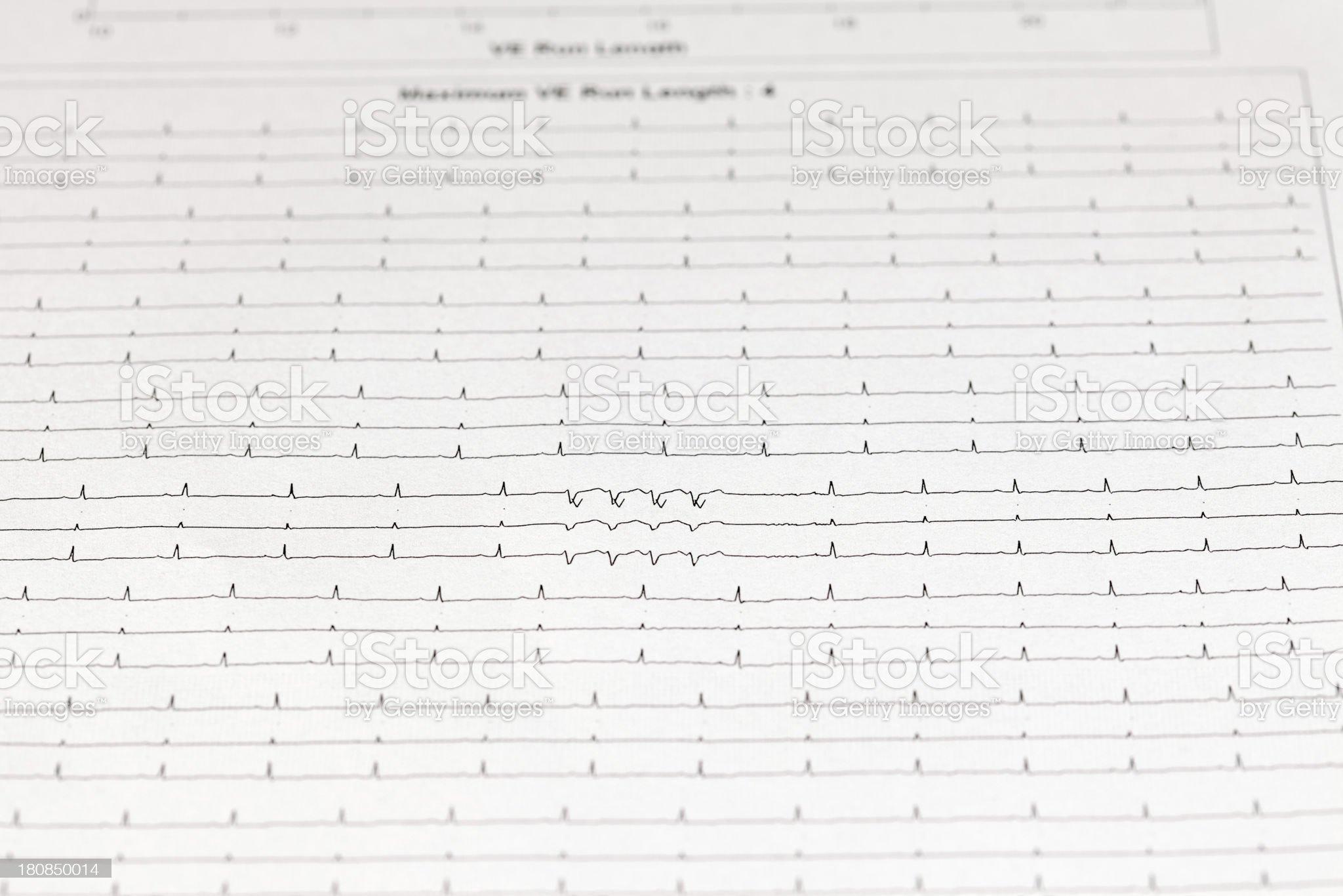 electrocardiogram (ECG) royalty-free stock photo