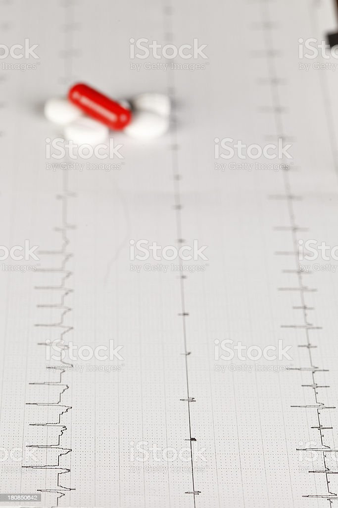 electrocardiogram (ECG) royalty-free stock photo