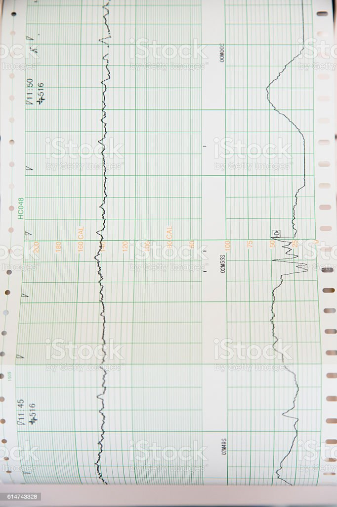Electrocardiograph Showing Human Heartbeat stock photo