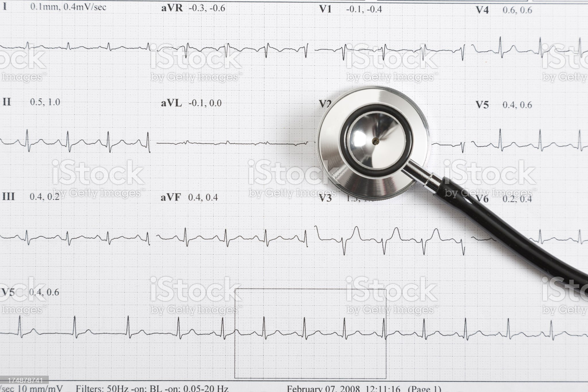 electrocardiography and stethoscope royalty-free stock photo