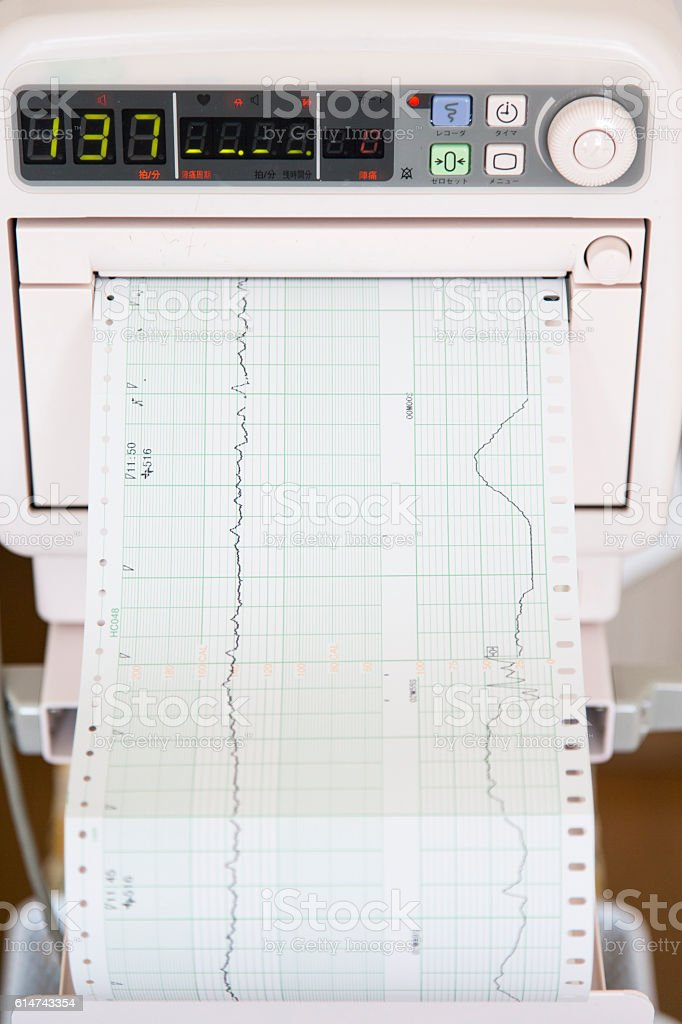 Electrocardiography Machine Showing Human Heartbeat stock photo