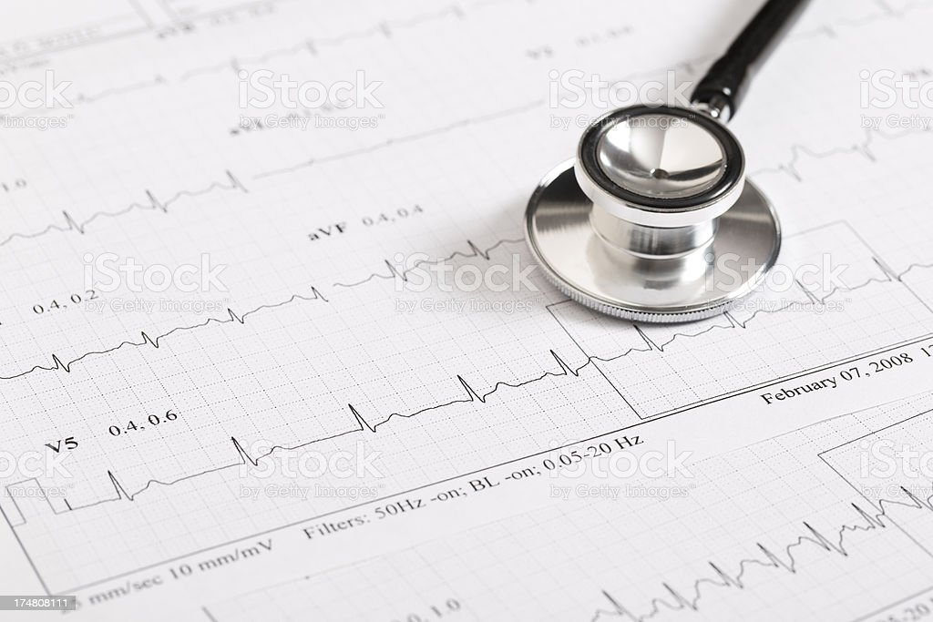 electrocardiography royalty-free stock photo