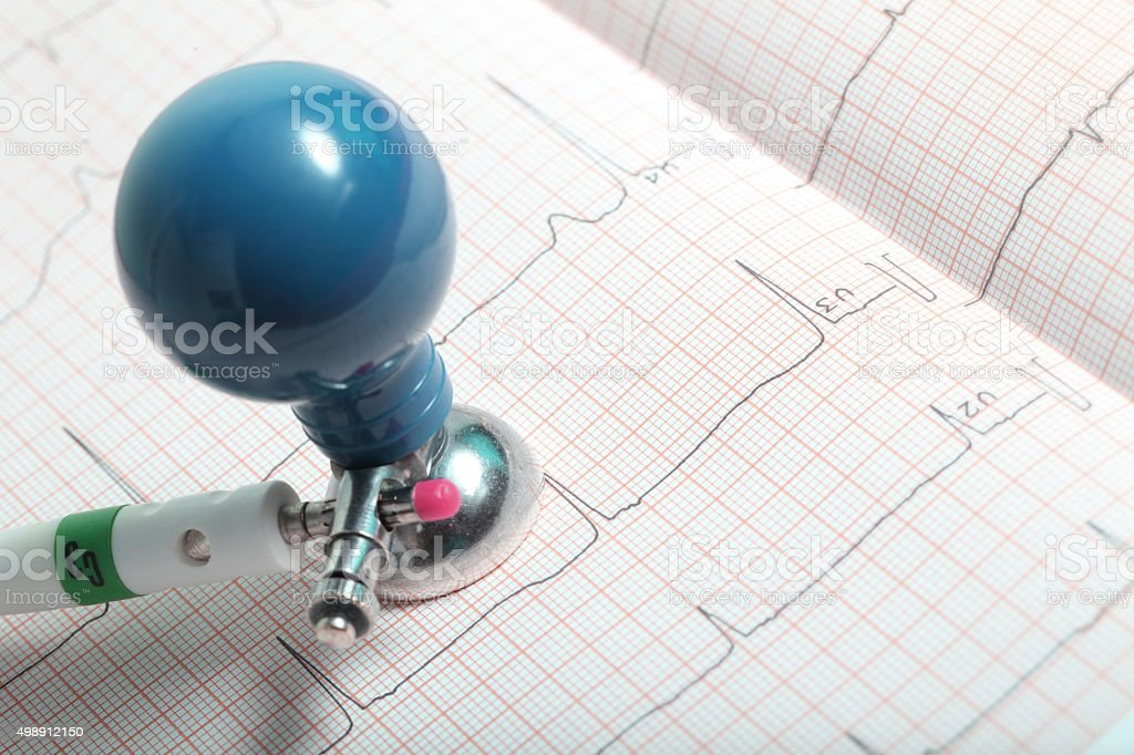 Electrode and ECG chart close-up stock photo