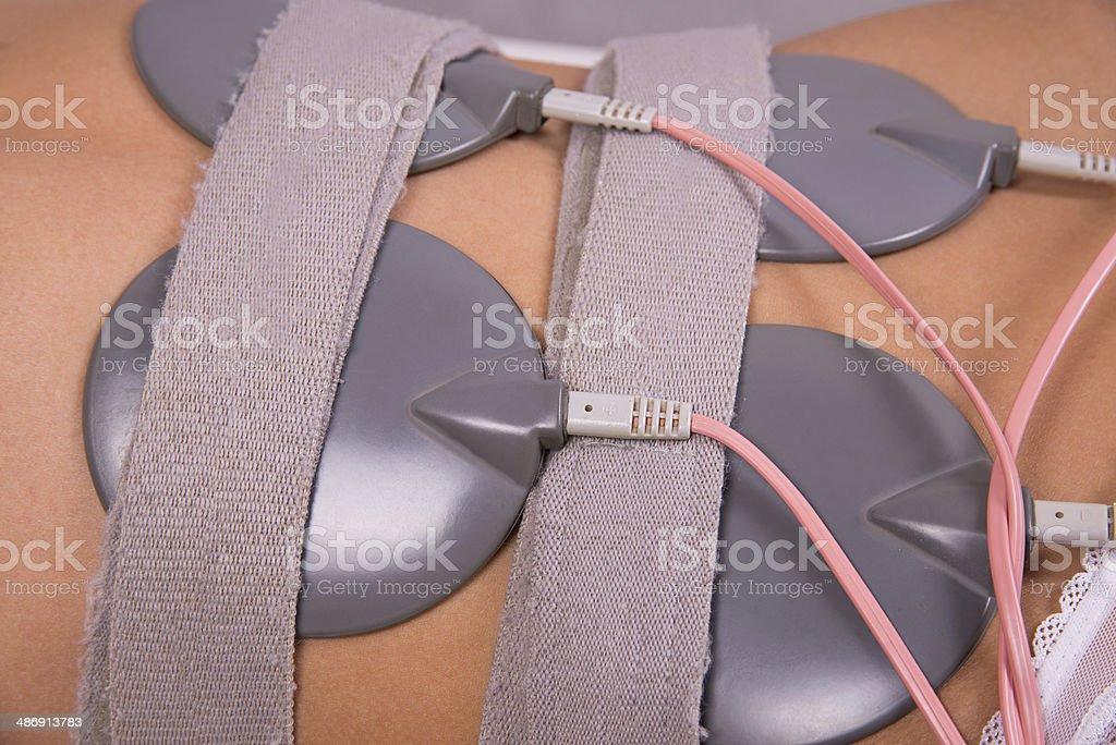 Electrostimulation royalty-free stock photo