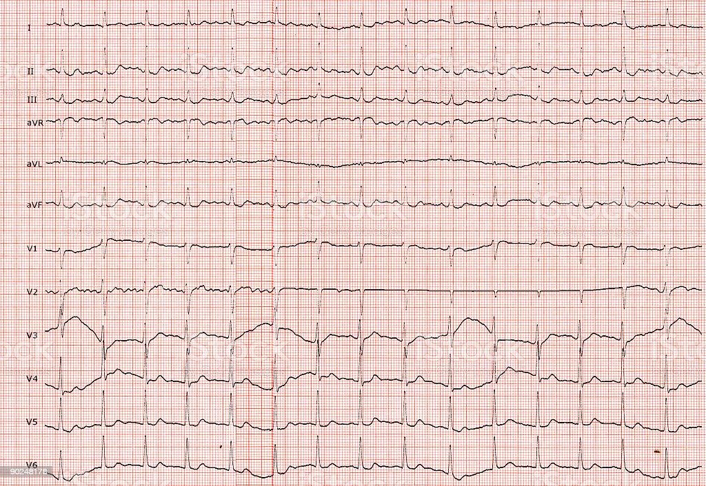 Elektrokardiograph royalty-free stock photo