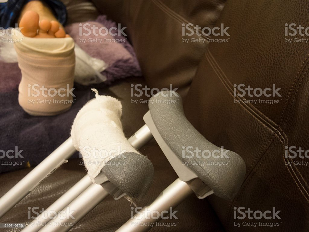 Elevating Fractured Ankle on Couch with Crutches stock photo