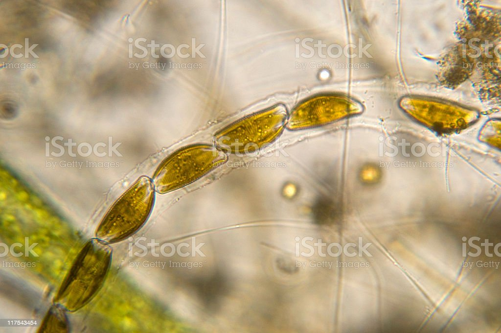 Encyonema diatom micrograph stock photo