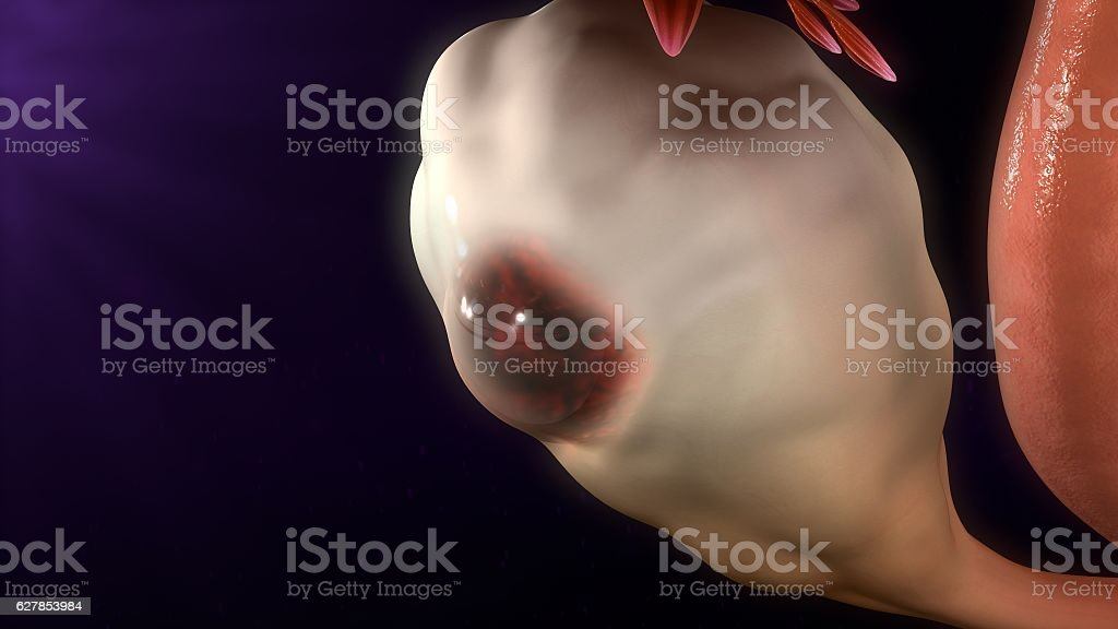 Endometriosis stock photo
