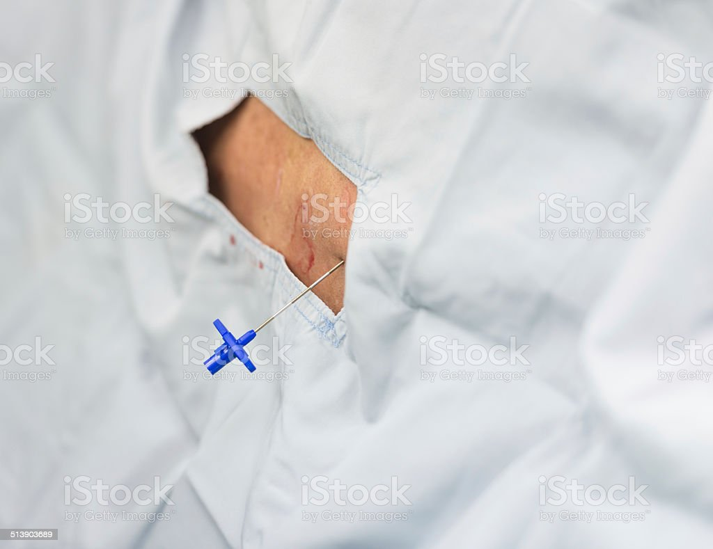 epidural analgesia stock photo