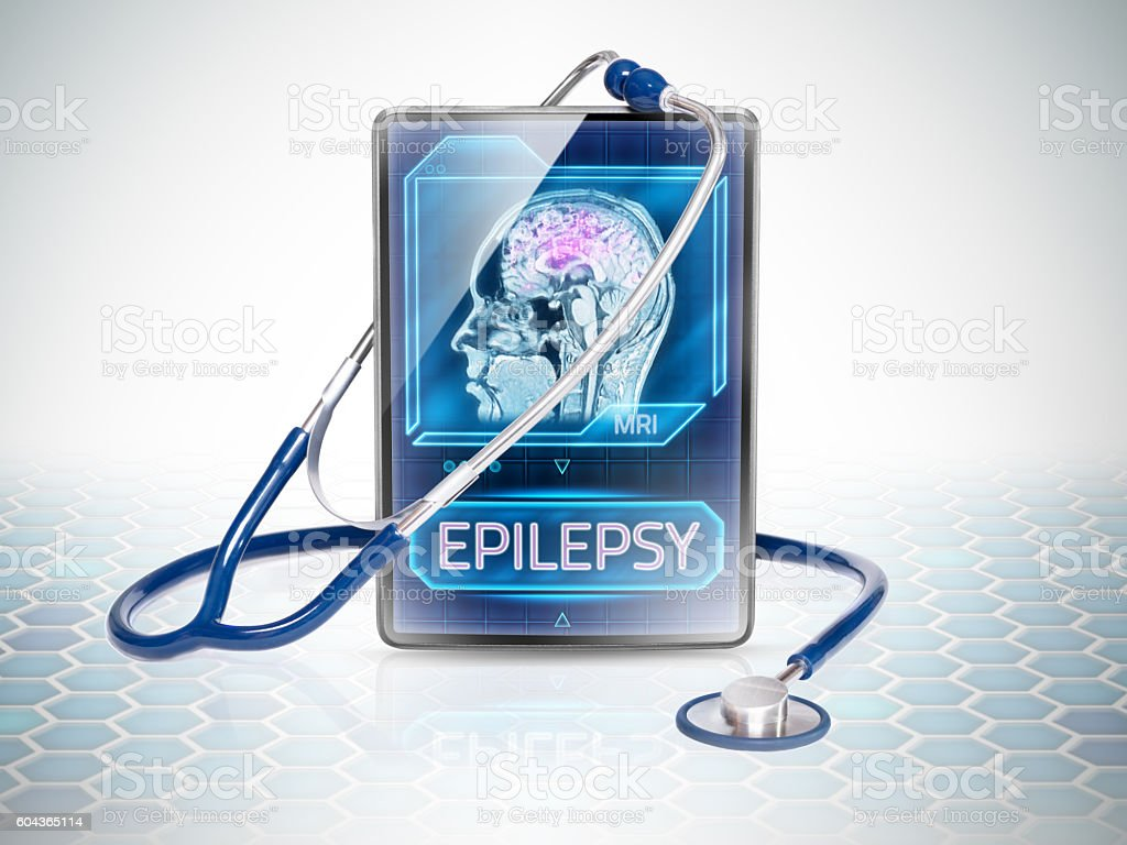 Epileptic brain stock photo