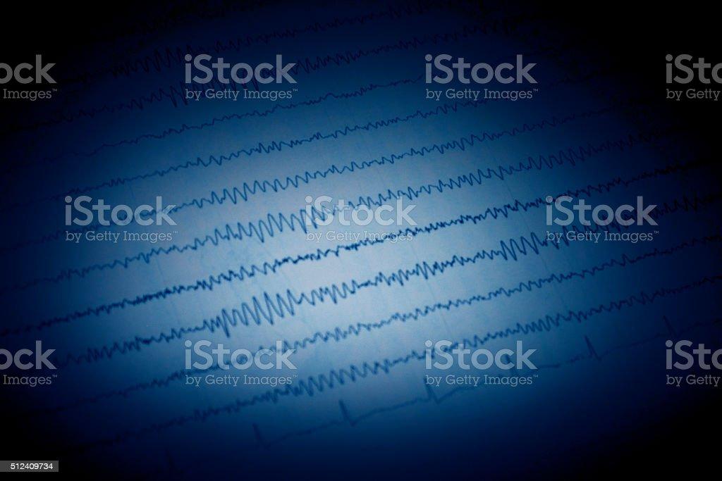 Epileptic seizure stock photo