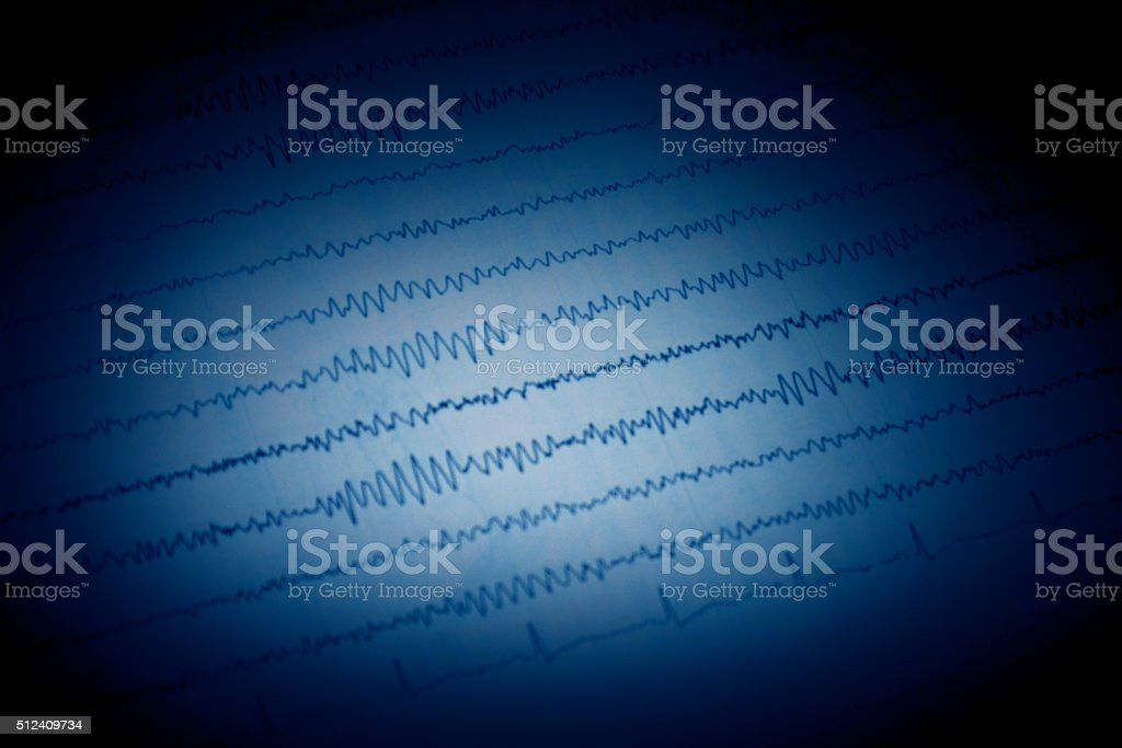Epileptic seizure stock photo