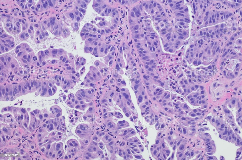 Esophageal adenocarcinoma.  H&E stain stock photo