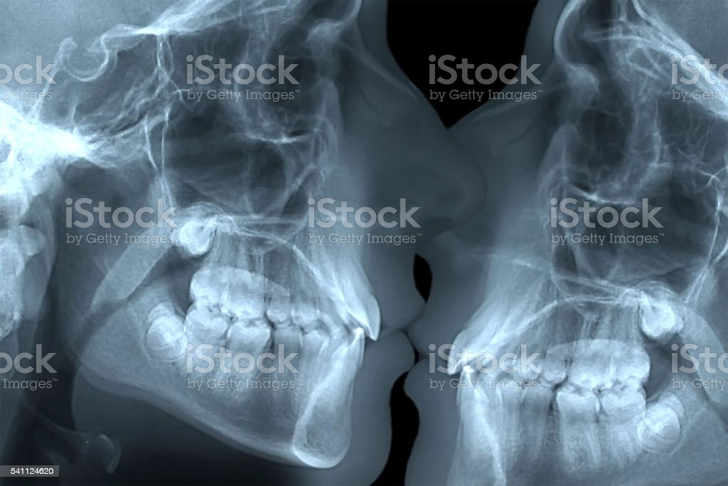 eternal love x-ray kissing stock photo