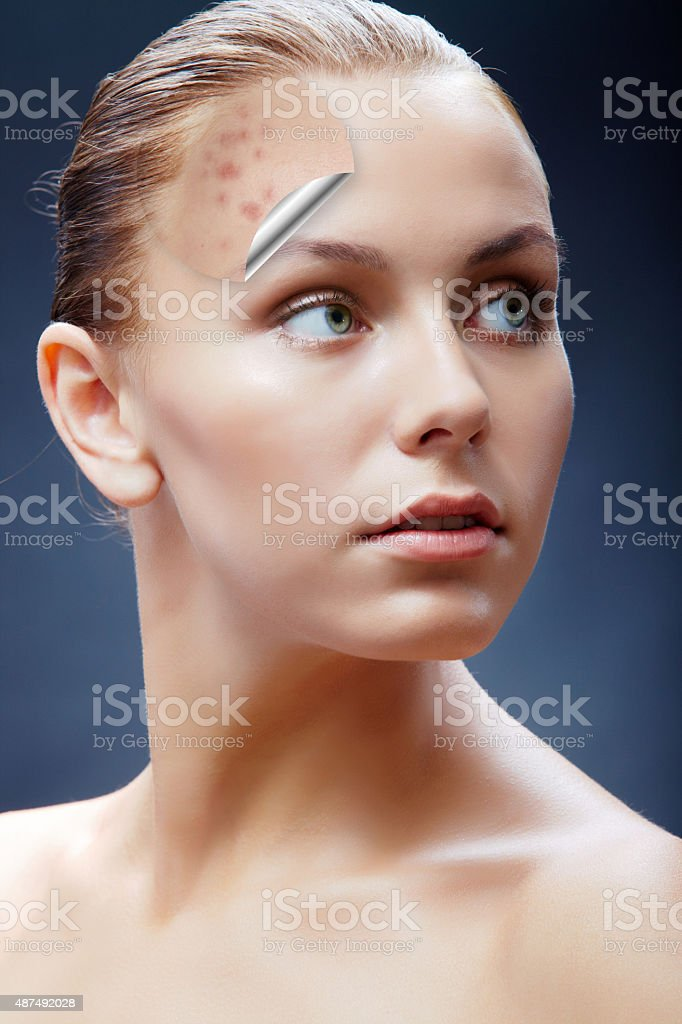 Exposed skin care stock photo