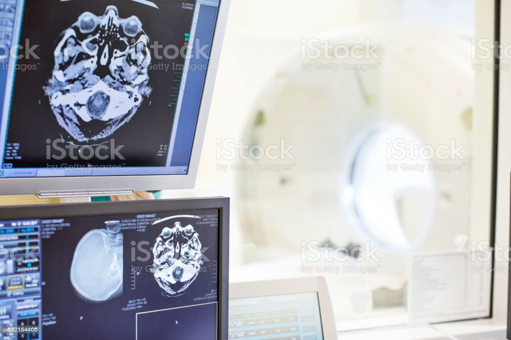 X-ray images are on computer screen. CAT scanner is seen from glass....