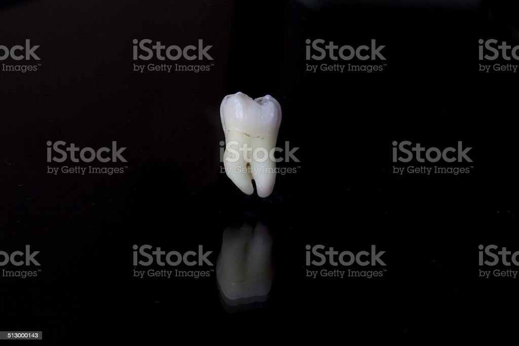 Extracted human lower wisdom tooth stock photo