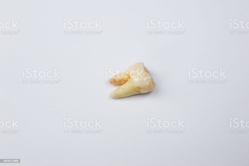 Extracted Tooth stock photo