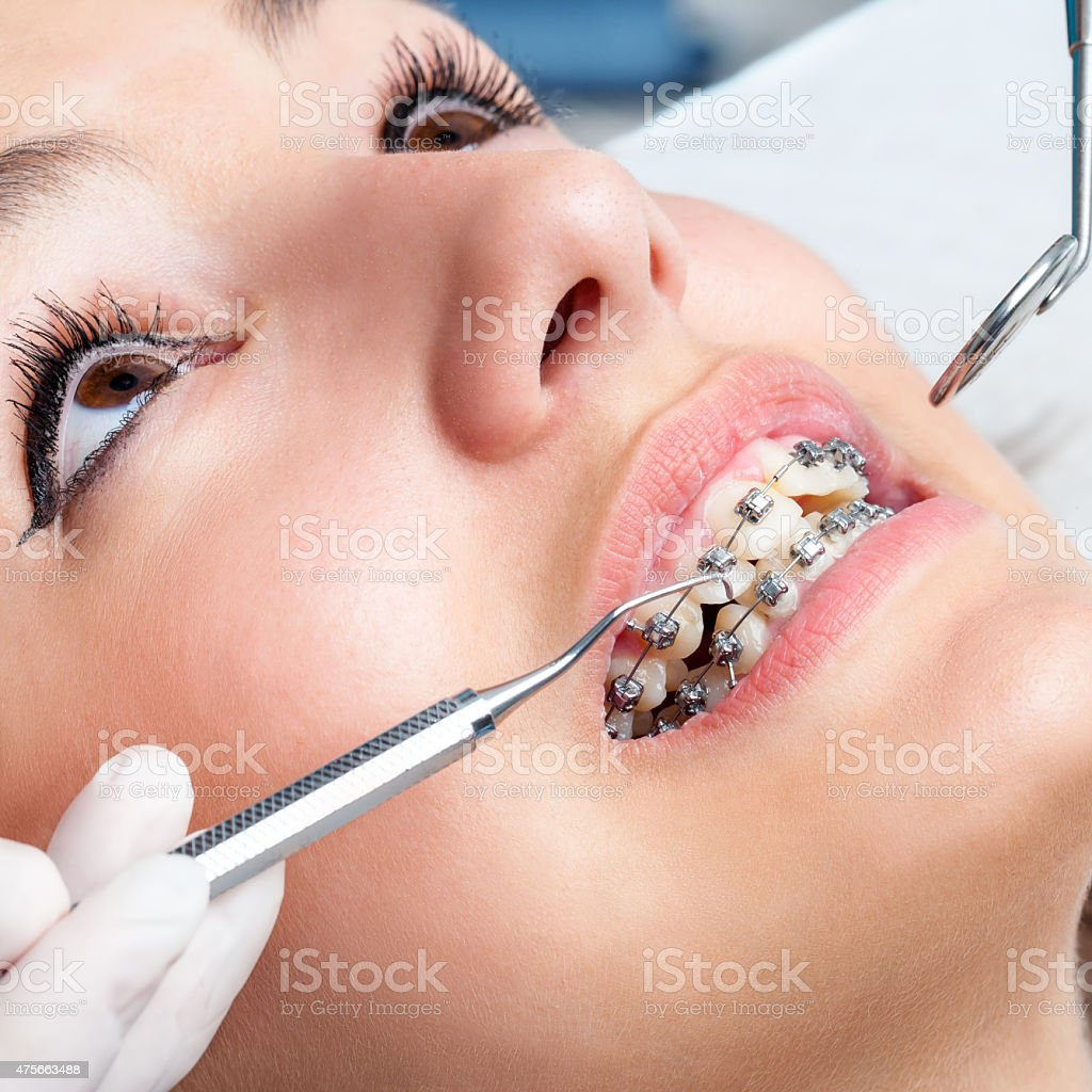 Extreme close up of hands working on dental braces. stock photo