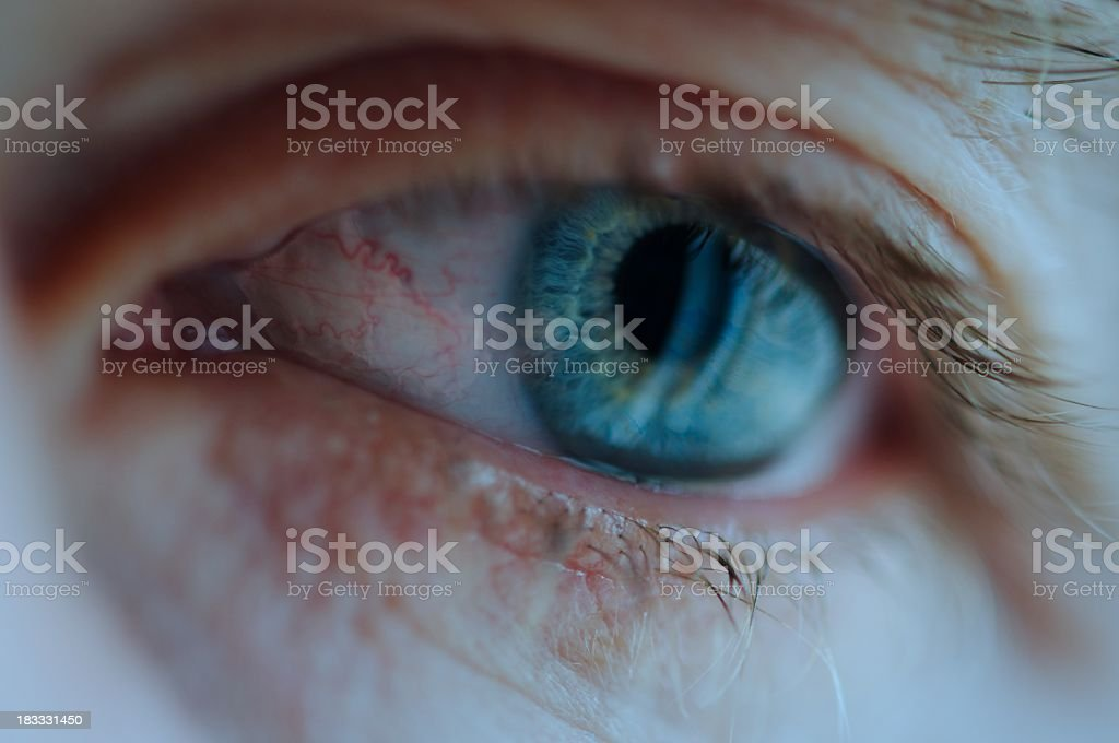 Extreme Close-Up of Bloodshot Eye with Tear royalty-free stock photo