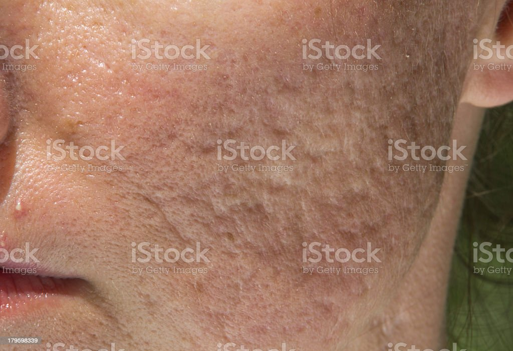 Extreme close-up of someone's cheek showing acne scars stock photo