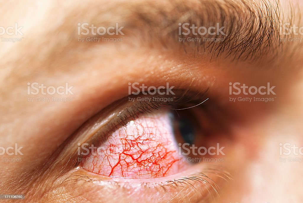 Eye allergy royalty-free stock photo