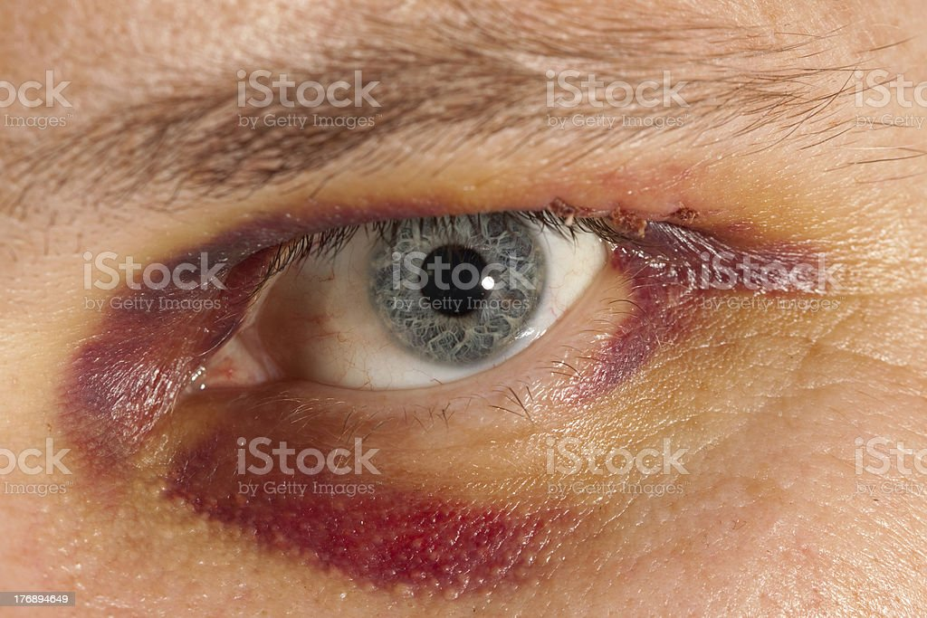 Eye bruise stock photo