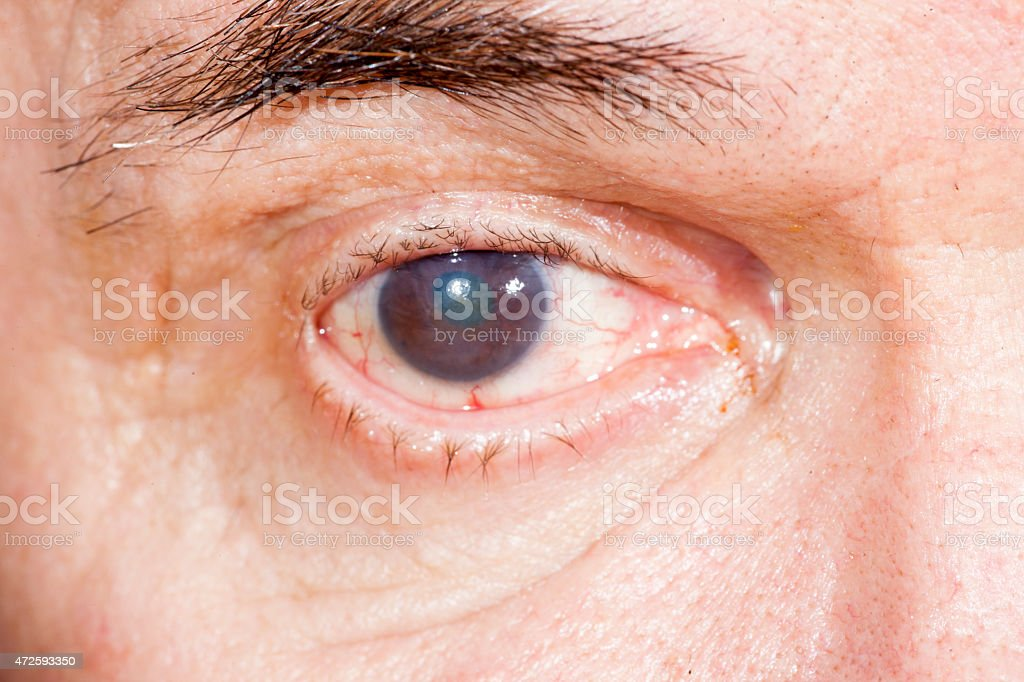 Eye disease infecting a brown eye stock photo