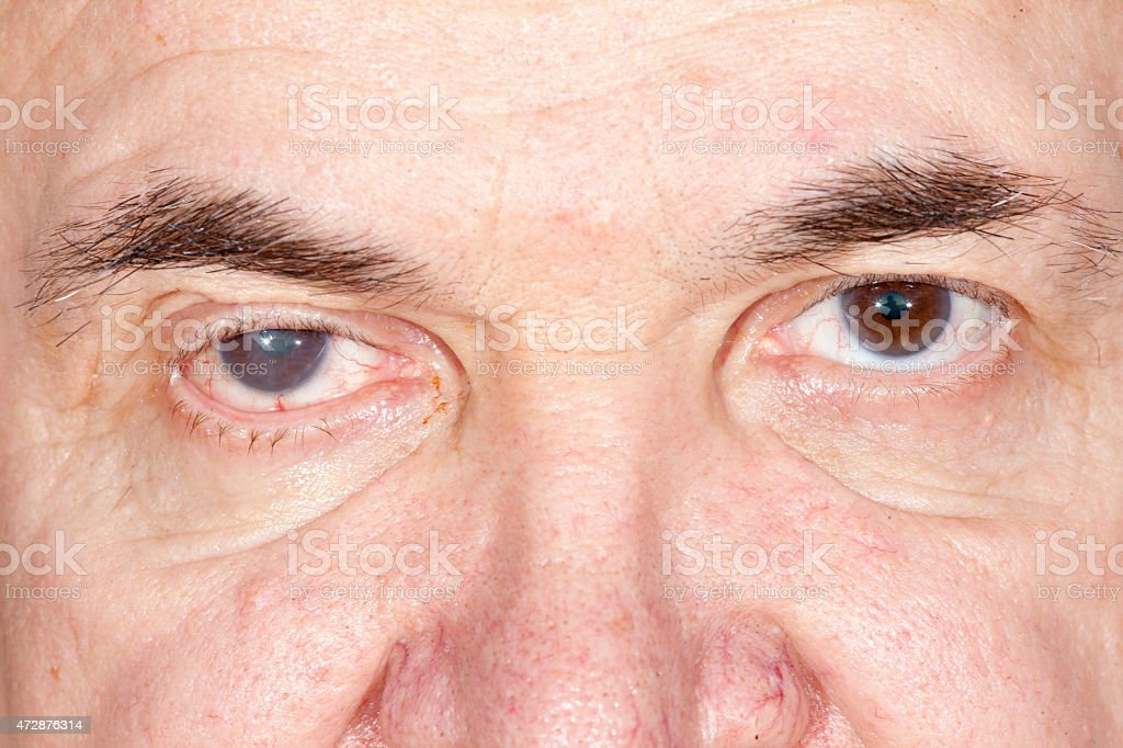 eye disease stock photo