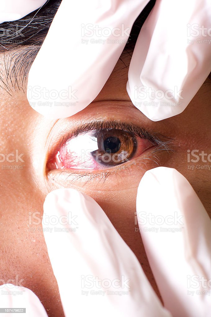 eye infection stock photo