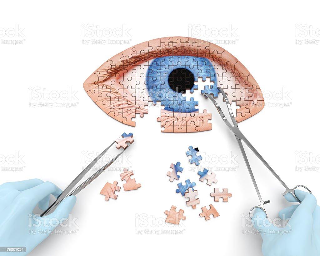 Eye operation stock photo