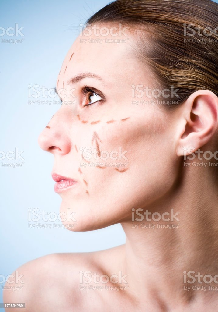 Face lift profile stock photo