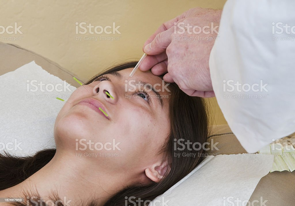 Face Treatment - Acupuncture Series stock photo
